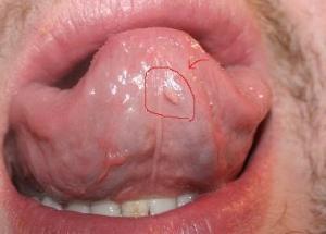 biểu hiện sùi mào gà ở lưỡi giai đoạn đầu