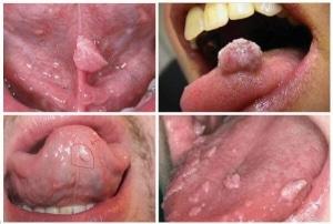 Dấu hiệu sùi mào gà ở miệng giai đoạn đầu