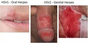 Hình ảnh bệnh mụn rộp sinh dục
