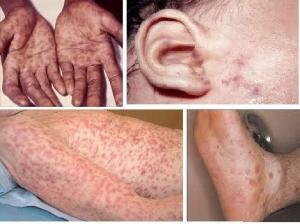 hình ảnh bệnh giang mai giai đoạn 2