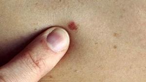 triệu chứng bệnh giang mai giai đoạn 1