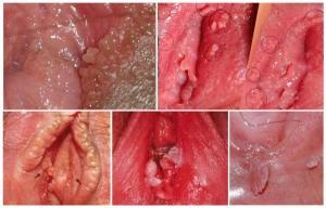triệu chứng bệnh sùi mào gà ở nữ