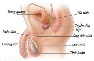 triệu chứng viêm tinh hoàn mãn tính