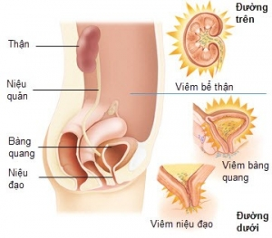 nguyên nhân tiểu ra máu có thể do nhiễm trùng đường tiết niệu