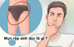 bệnh mụn rộp sinh dục là gì