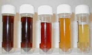 nước tiểu đổi màu là dấu hiệu viêm đường tiết niệu